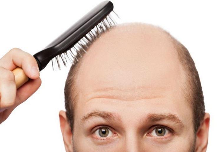 melhor shampoo aos 20 anos em círculos